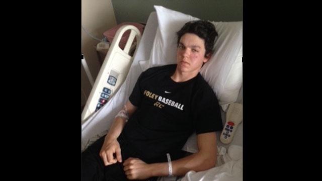 Baseball-player-face-broken_25662398