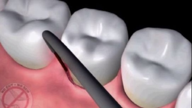 Dental laser animation_11803682
