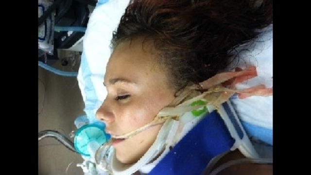 Unidentified Roseville girl critically hurt in accident Friday_16264864