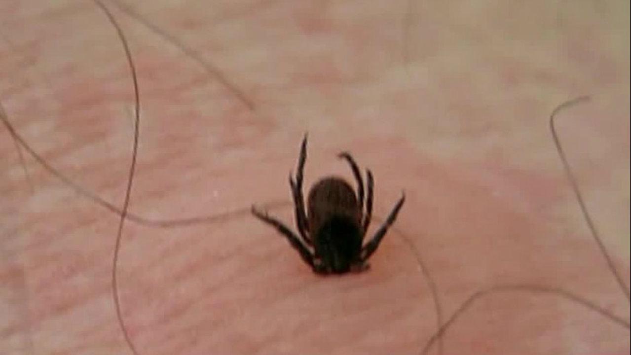ticks in michigan is that a tick bite