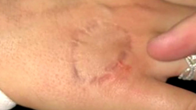 Hand bite marks Exodos incident
