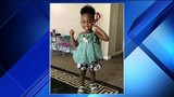 Family of girl, 3, shot in head holding out hope