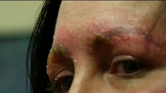 Metro Detroit woman says eyebrow 'microblading' nightmare left her in…