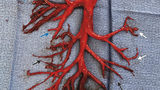 Man spits up bizarre blood clot shaped just like part of his lung