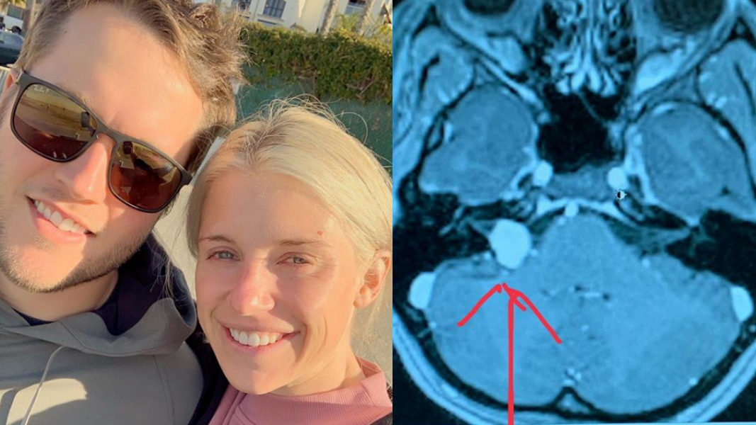 Kelly Stafford is undergoing brain surgery today; her brother asks for prayers