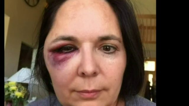 Woman hit by foul ball at Detroit Tigers game says security guard distracted her