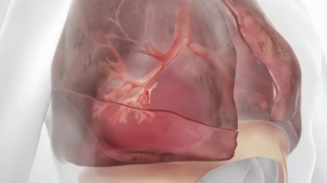 New procedure could bring relief to those suffering from COPD