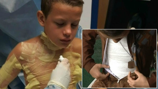What is the YouTube 'fire challenge'? Michigan boy badly burned by friend