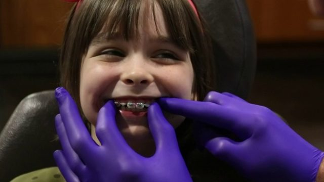 Why should children begin to see an orthodontist at age 7?